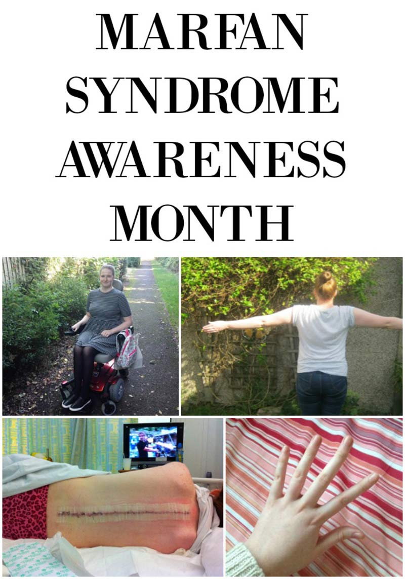 Do you know what Marfan Syndrome is? Click to learn more about Marfan as part of Marfan Awareness month. Pin to save for later.