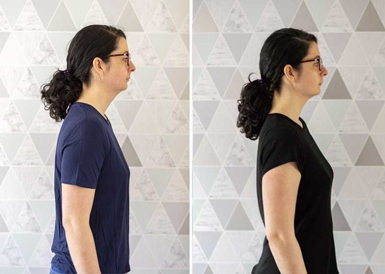 Left: Photo of Donna before she began wearing the Active Posture shirt 2.0. Her neck is pushed forward and shoulders rounded. Right: after wearing the shirt for a few weeks, Donna stands with her shoulders back and neck straighter.